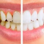 4 Natural Homemade Remedies to Remove Teeth Plaque